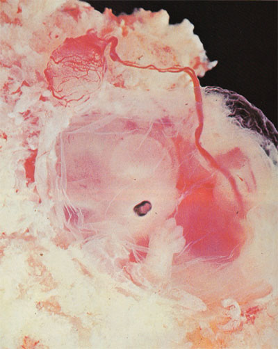 a 6  week old human embryo